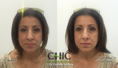Lips CA Before & After