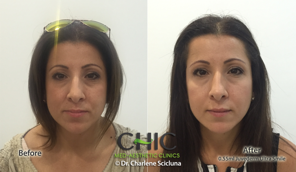 Lips CA CHIC Before & After 0.55ml J US