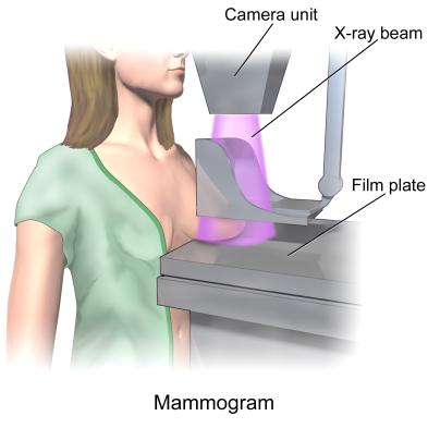 blausen_0628_mammogram